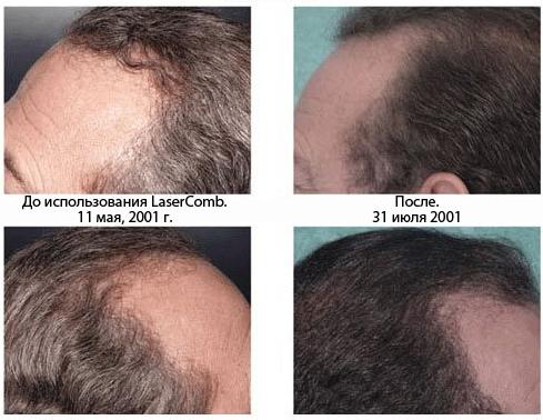 расческа для роста волос