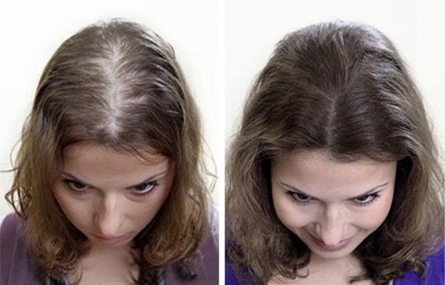 Восстановление волос после хим завивки народные рецепты