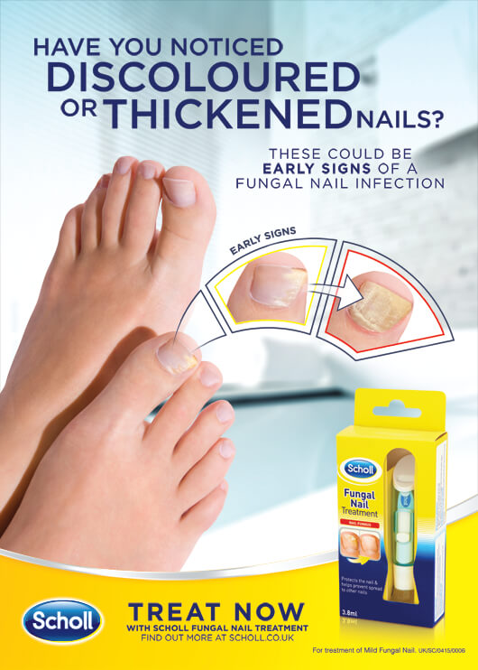 Treatments for fungal nail infections. Jill scott insomnia